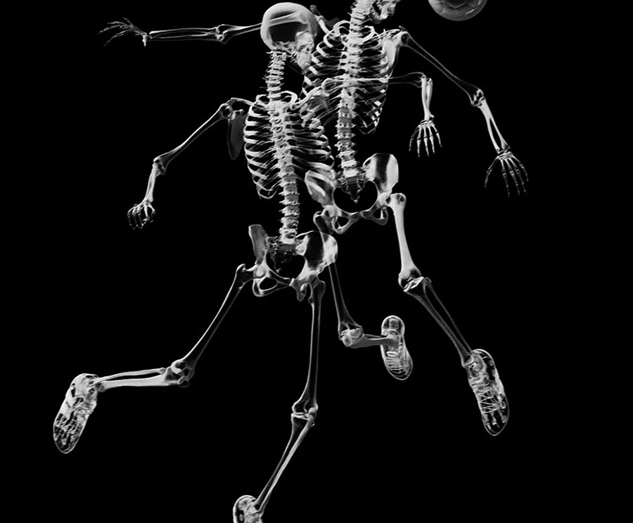http://vetcare.amsterdam/wp-content/uploads/2015/12/skeletons_ball_football_x-ray_picture_11289_3840x2160.jpg